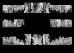 A complete set of Canine dental x-rays.